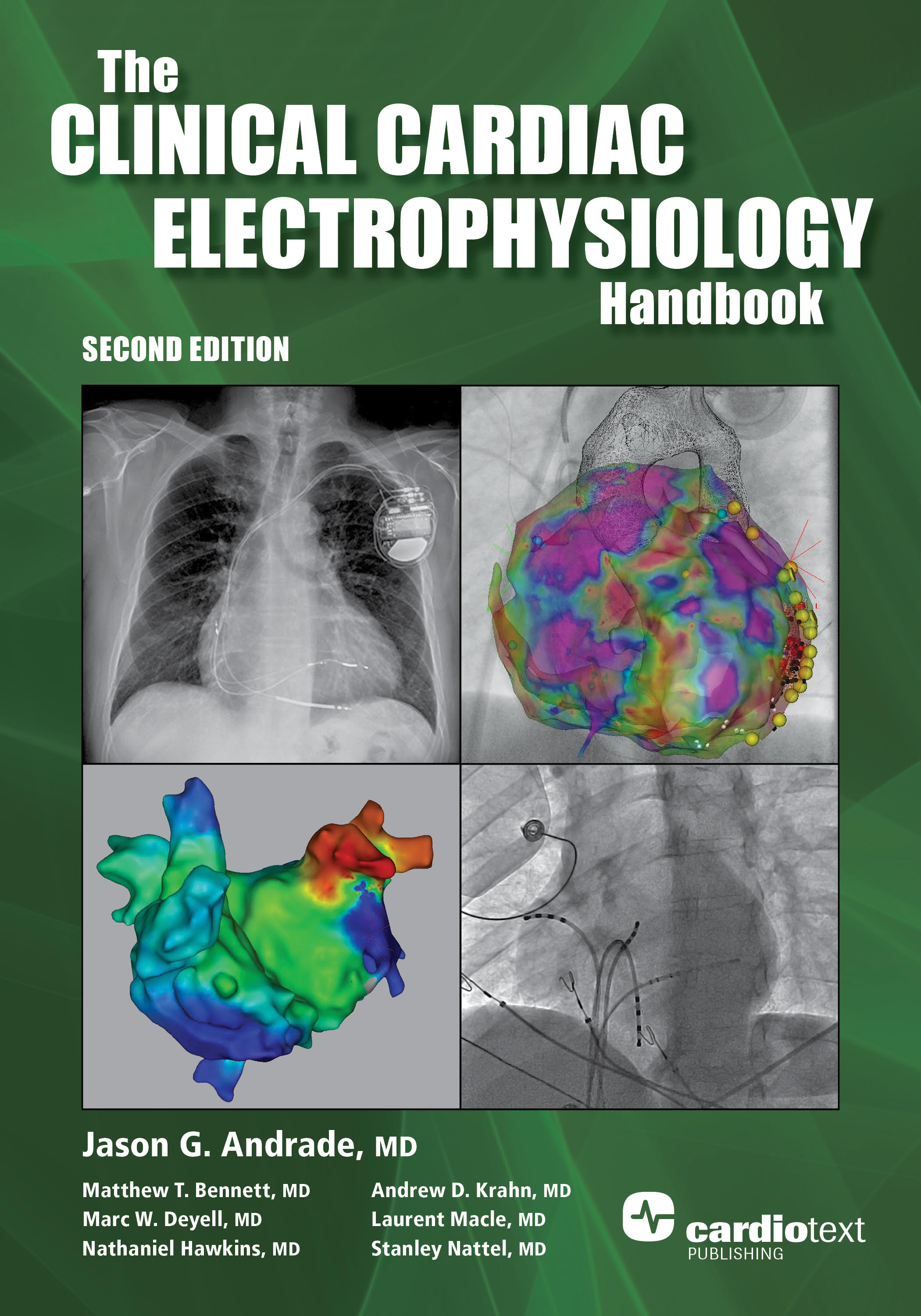 Clinical Cardiac Electrophysiology Handbook, Second Edition