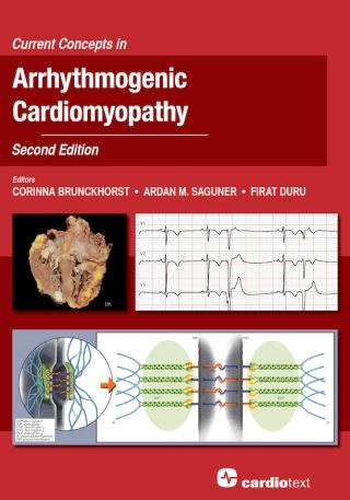 Current Concepts in Arrhythmogenic Cardiomyopathy, Second Edition